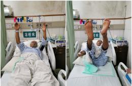 梧州市工人医院开通绿色通道紧急救治脑卒中患者